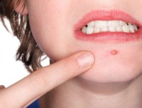 How to prevent pimples and maintain a clear skin